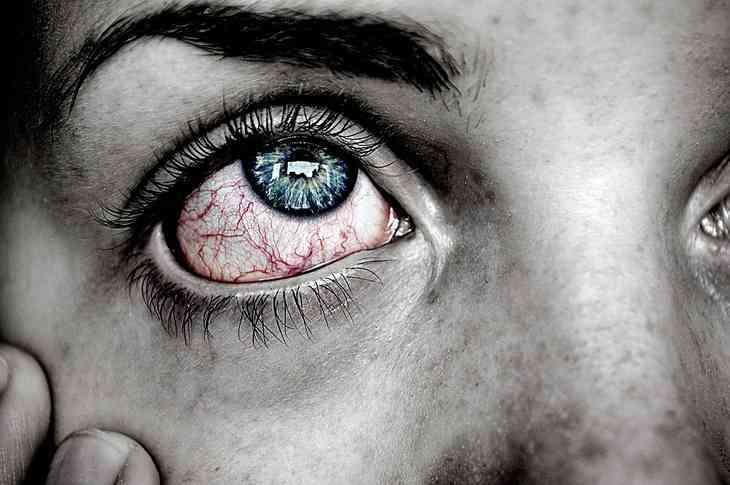Ader im Auge geplatzt – Ursachen, Symptome, Behandlung und mehr!