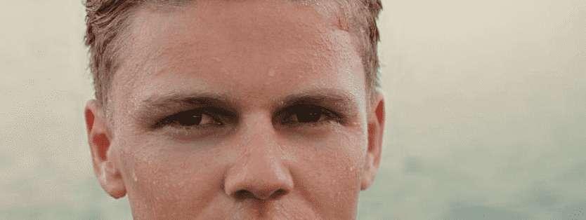 Deine Augen jucken? Mögliche Ursachen + Behandlungen