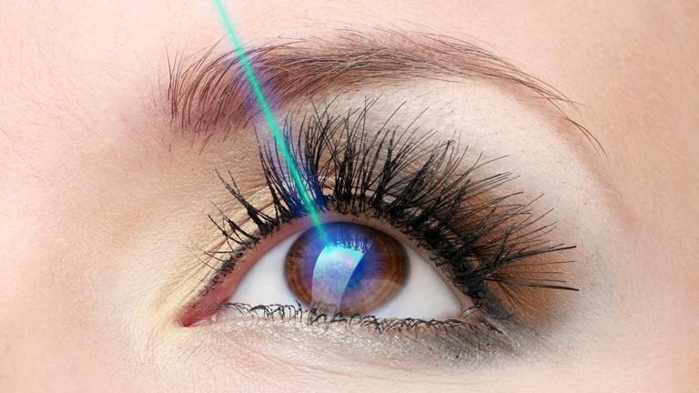 Augen lasern – alles Wichtige rund um den Eingriff