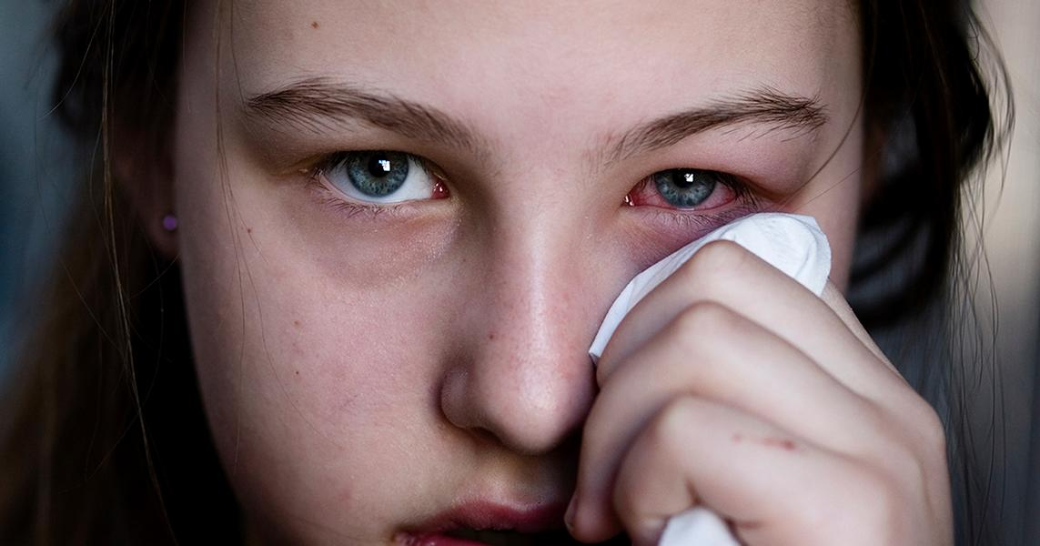 Hausmittel gegen Bindehautentzündung – unsere Tipps!
