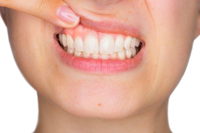 Was tun bei Zahnfleischentzündung? Ursache und Behandlung