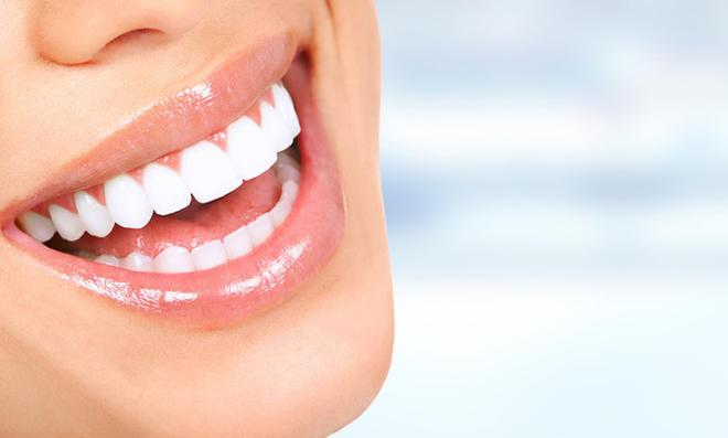 Zahnstein selber entfernen – funktioniert das?