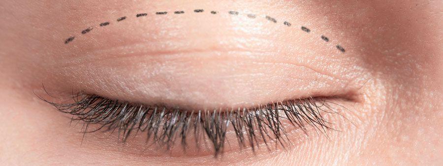 Augenlider Straffen Lidstraffung – Ablauf, Kosten, Risiken